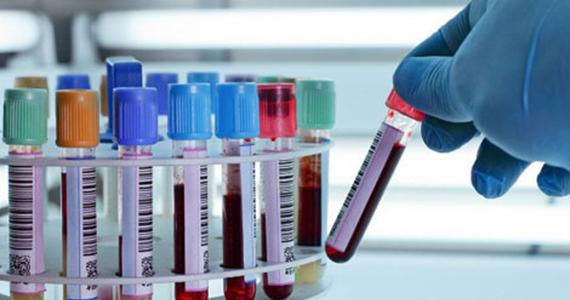 Dịch vụ Xét nghiệm Sinh hoá - Huyết học