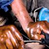 Bệnh viêm da tiếp xúc do dung môi hữu cơ ở người lao động và giải pháp can thiệp